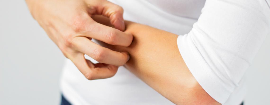 Articol Corpul te anunță dacă suferi de alergie sau intoleranță alimentară (II) - Tehnologie pentru viață