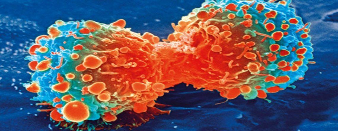 Articol Predispoziția genetică la cancer poate fi învinsă prin alimentație - Tehnologie pentru viață