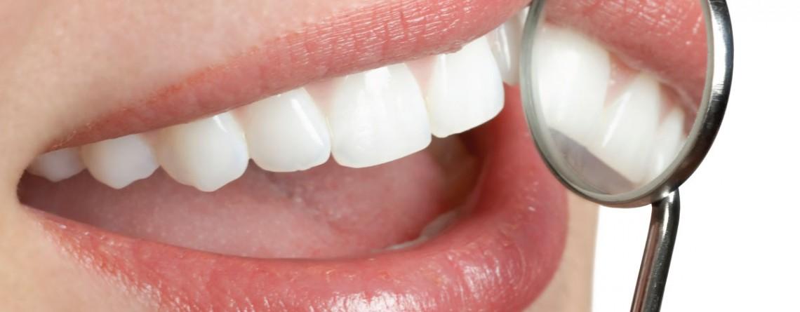 Articol 6 metode naturale pentru albirea dinţilor - Tehnologie pentru viață